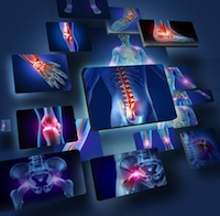 sglt2 inhibitors get stronger warnings regarding bone fractures