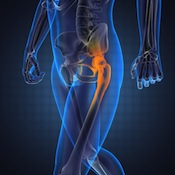 more manufacturers face hip implant lawsuits
