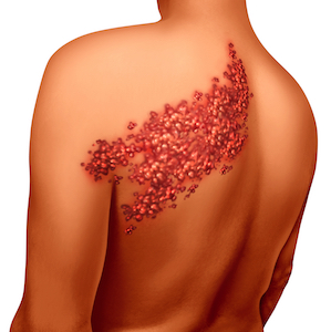 Zostavax linked to causing shingles